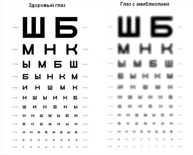 Купить очки для зрения дешево в челябинске