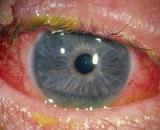 Почему глаза гноятся чем лечить для домашних условиях