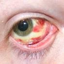 Лопнули капилляры в глазу у беременной